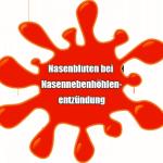 Nasenbluten bei Nasennebenhöhlenentzündung