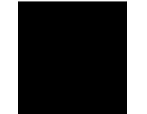 Nasennebenhöhlenentzündung (Sinusitis)