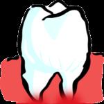 Kieferhöhlenentzündung wegen einer Zahnwurzelentzündung?
